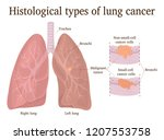 histological types of lung... | Shutterstock .eps vector #1207553758