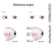 strabismus surgery. eye muscle... | Shutterstock .eps vector #1208613022