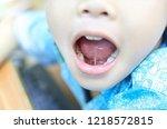 Tongue Tie Patient   Children...