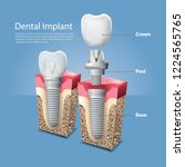 human teeth and dental implant...   Shutterstock .eps vector #1224565765