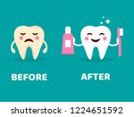 teeth care concept. before and... | Shutterstock .eps vector #1224651592
