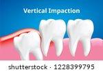 wisdom tooth   vertical... | Shutterstock .eps vector #1228399795