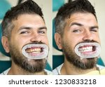 White Teeth   Before And After...