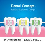 teeth with colourful braces ... | Shutterstock .eps vector #1231954672