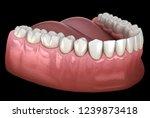 mandibular human gum and teeth. ... | Shutterstock . vector #1239873418