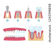 set of dental crowns and... | Shutterstock .eps vector #1242598858