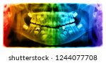 panoramic radiograph is a... | Shutterstock . vector #1244077708