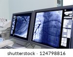 monitor screen in radiology.   Shutterstock . vector #124798816
