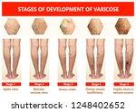 varicose veins on a female...   Shutterstock . vector #1248402652