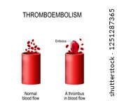 thromboembolism. two vessels ... | Shutterstock .eps vector #1251287365