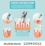 realistic illustration tooth... | Shutterstock .eps vector #1255919212