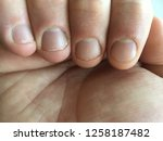 finger nails hand close up bite ... | Shutterstock . vector #1258187482