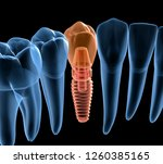 premolar tooth recovery with... | Shutterstock . vector #1260385165
