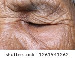 Image Eyes Closed Of Elderly...