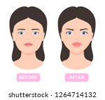 woman face before and after... | Shutterstock .eps vector #1264714132