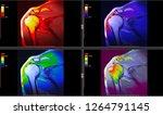 radiology imaging of human... | Shutterstock . vector #1264791145