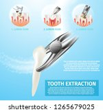 realistic illustration tooth... | Shutterstock .eps vector #1265679025