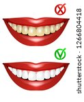 teeth before and after... | Shutterstock .eps vector #1266804418