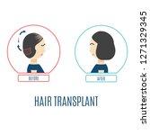 hair transplantation... | Shutterstock . vector #1271329345
