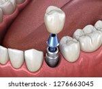 premolar tooth crown... | Shutterstock . vector #1276663045
