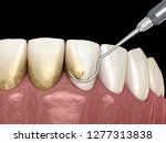 oral hygiene  scaling and root... | Shutterstock . vector #1277313838