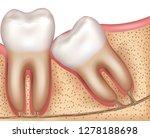 wisdom tooth eruption problems... | Shutterstock .eps vector #1278188698