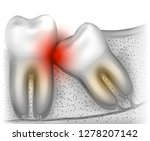 wisdom tooth eruption problems... | Shutterstock .eps vector #1278207142