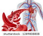 Sickle Cell Heart Circulation...