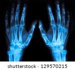 X Ray Image Of Both Human Hands