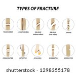types of fracture. fracture... | Shutterstock .eps vector #1298355178