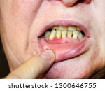 Small photo of Periodontitis The inflammatory process in the gum area. Exposure of the necks of the teeth. The doctor examines the oral cavity. Preliminary examination by a dentist.