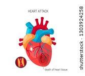 heart attack concept. human... | Shutterstock .eps vector #1303924258