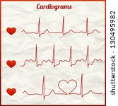 set of 3 cardiograms  medical... | Shutterstock .eps vector #130495982