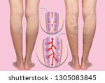 varicose veins on a female... | Shutterstock . vector #1305083845