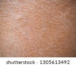 dry skin or ichthyosis texture... | Shutterstock . vector #1305613492