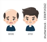 bald man without confidence and ... | Shutterstock .eps vector #1306914262