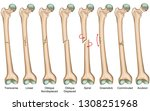 bone fracture types medical... | Shutterstock .eps vector #1308251968