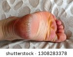 neglected and chapped human...   Shutterstock . vector #1308283378