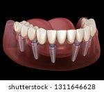 mandibular prosthesis all on 6... | Shutterstock . vector #1311646628