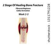 2 stage of healing bone... | Shutterstock .eps vector #1311791228