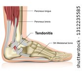 peroneal tendonitis  ankle... | Shutterstock .eps vector #1312235585