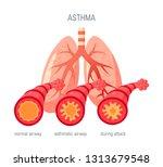 asthma disease concept. vector... | Shutterstock .eps vector #1313679548