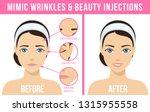 women s anti aging skin care.... | Shutterstock . vector #1315955558