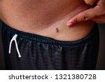 man with birthmark on abdominal ... | Shutterstock . vector #1321380728