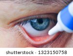 Small photo of Implementation drug in conjunctival sac. Instill eye ointment.