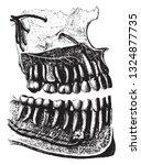 The Teeth Of Man Seen In...