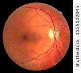 View Inside Human Eye Disorder...