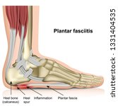 Plantar Fasciitis 3d Medical...