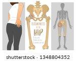 hip osteoarthritis infographic. ... | Shutterstock .eps vector #1348804352