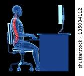 3d rendered medical...   Shutterstock . vector #135034112